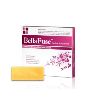 bellafuse