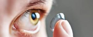 Điều trị cận thị không phẫu thuật