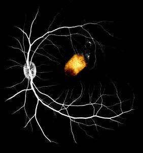 Bước tiến quan trọng trong cấy ghép tế bào võng mạc