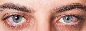 Hội chứng khô mắt sau khi phẫu thuật đục thủy tinh thể (phaco)
